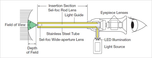stracture drawing Miniborescopes